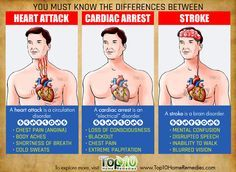 difference between heart attack, stroke and cardiac arrest