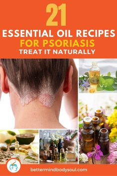Natural treatments for psoriasis are easier to come by than you think. Products from companies like Young Living have been used to make blends to apply on the scalp and other areas where dry skin unge Home Remedies For Psoriasis, Scalp Psoriasis Treatment, Psoriasis Cream, Nail Psoriasis, Young Living, Essential Oils For Psoriasis, Essential Oil Dry Scalp, Shampoo For Dry Scalp, Oil For Dry Skin