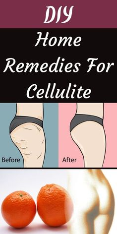 You only have to wander into any health spa or pharmacy and see the hundreds of products dedicated to cellulite to realize how big of a problem it is for many women. #HomeRemedies #Cellulite #Remedies Cellulite Remedies, Shadow Art, Pharmacy, Perfume, Holiday Parties, Home Remedies, Wander, Health And Wellness, Everything