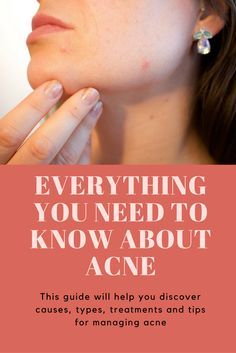 A comprehensive guide to effectively identifying, treating, managing and preventing further acne breakouts. Wellness Tips, Health And Wellness, Type Treatments, Acne Breakout, Skin Problems, Pimples, Need To Know, Conditioner, Natural