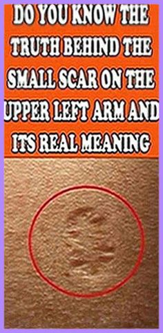 Have you ever wondered what that small scar on the upper left arm is? Holistic Remedies, Herbal Remedies, Health Remedies, Natural Remedies, Headache Remedies, Health And Fitness Articles, Health And Nutrition, Fitness Tips, Health Tips
