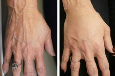 #HandRejuvenation with #IPL #PhotoFacial treatments & #DermalFiller products can make your hands 👍🏻look years younger! #radiesse #youngmedicalspa #handrejuvenationtreatment