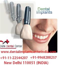 Best Top Keyhole immediate loading function #Dental #Implant #Treatment procedure clinic in India  http://www.dentalimplantcenterindia.com/immediate-loading-function-dental-implants-india.php  best price affordable low cost of flapless painless full mouth computer guided Keyhole Immediate loading function Dental Implant Placement surgery Treatment procedure by Implant dentist in India.