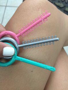Color braces