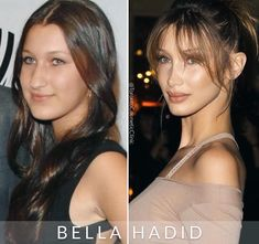 Bella Hadid plastic surgery: Before and after Worst Celebrities, Beautiful Celebrities, Bella Hadid Surgery, Bella Hadid Nose, Plastic Surgery Photos, Celebrity Plastic Surgery, Grunge Hair, Hair Inspiration, Hair Makeup