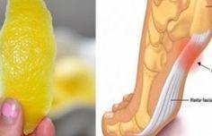 Cáscara de limón para deshacerse de la inflamación y los dolores cronicos