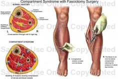 fasciotomy for compartment syndrom