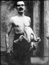 Jean Libbera, born in 1884 in Italy had an epigastric parasitic twin consisting of two arms, two legs, a small torso and a vestigial head embedded in his abdomen.  He called his twin 'Jacques' and often dressed him in a different colored suit while exhibiting.  Jacques showed reflexes and the limbs moved independently of Jean.