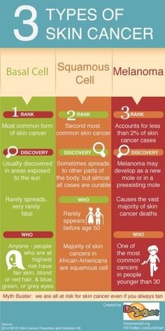There three different types of sunscreen. Melanoma is the most vital type of skin cancer.