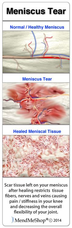 Medial meniscus tears will heal with massive amounts of scar tissue.