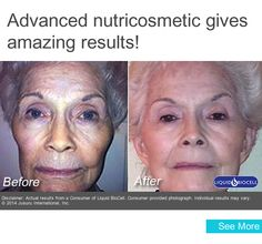 0aa7f99837 Advanced nutricosmetic gives amazing results! Collagen