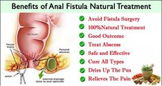 Top 5 Herbs To Treat Anal Fistula Naturally