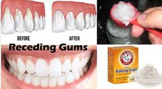 Here is how to cure periodontal disease naturally and painlessly. Periodontal disease (Periodontitis) is a chronic infection that affects the gums and ...