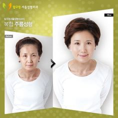 30 Startling Before and After South Korean Plastic Surgery Pictures Implant Dentistry, Cosmetic Dentistry, Dental Implants, South Korean Plastic Surgery, Plastic Surgery Pictures, Botox Brow Lift, Korean Skincare Steps, Bad Plastic Surgeries, Skin Care Routine 30s