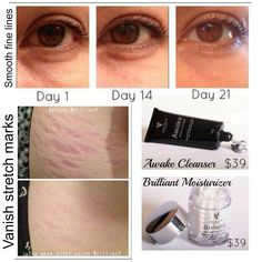 more before and afters from Younique products! Illuminate Clear is the new Awake.. when paired together with the Brilliant Moisturizer.. it does wonders for stretch marks and wrinkles! Your skin will thank you :)