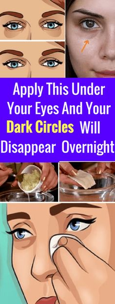 Apply This Under Your Eyes And Your Dark Circles Will Disappear Overnight – seeking habit