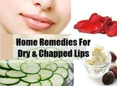 Home cures that surety mitigation from dry lips