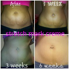 It Works Stretch Mark Cream is helping me prevent stretch marks and as you can see.def helps get rid of them too! Stretch Marks On Thighs, Prevent Stretch Marks, Stretch Mark Cream, Ultimate Body Applicator, It Works Products, Crazy Wrap Thing, Body Wraps, Post Pregnancy, Body Contouring