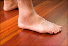 Acute ankle sprain how do you get a sprained ankle,is a sprained ankle serious major ankle sprain,swollen ankle sprain what to do if you sprain your ankle. Ankle Ligaments, Toe Injuries, Homemade Mouthwash, Swollen Ankles, Sprained Ankle, Big Toe, Home Treatment, Skin So Soft, Natural Treatments