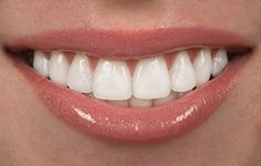 Dental Crowns in Kennewick, WA - http://www.kennewicksmiles.com/services/dental-crowns/
