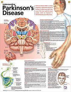 Understanding Parkinson's Disease anatomy poster lists symptoms such as decreased/loss of sense of smell, depression, sleep problems, etc.