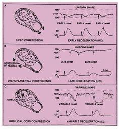 Decelerations - Early, Late, and Variable w/ explanations Newborn Nursing, Child Nursing, Ob Nursing, Nursing Students, Medical Students, Maternity Nursing, Labor Nurse, Rn Nurse, Nurse Life