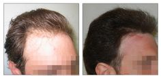 FUE Hair Transplant - 2 sessions - 1000 grafts.