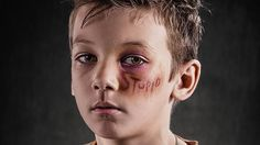 Richard Johnson's Weapon of Choice project shows the impact of verbal abuse