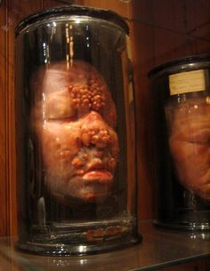 Not pocks or a tumor but the cankers of syphilis - Mutter Museum