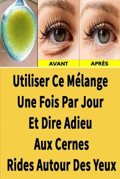 Diy Beauty Face, Beauty Care, Beauty Hacks, How To Grow Eyebrows, Beauty Tips For Teens, Eye Treatment, Belleza Natural, Face And Body, Body Care