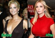 Ivanka Trump looking a little more heavy-chested than she has in the past. Considering a breast augmention? Give us a call at (949) 870-2688 to schedule a consultation! | Corona Del Mar | Newport Beach