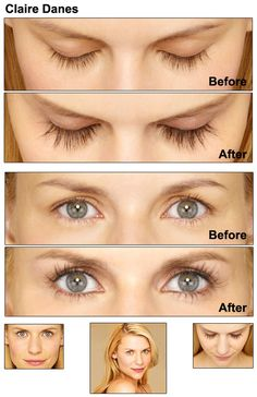 1d8006251f5 natural remedy for eyelash growth Best Eyelash Growth, Natural Eyelash  Growth, Eyelash Growth Serum