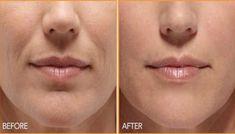 Πώς έδιωξα τις ρυτίδες γύρω από το στόμα σε 3 ημέρες με φυσικό τρόπο χωρίς ενέσεις – Alla ki Alla online!