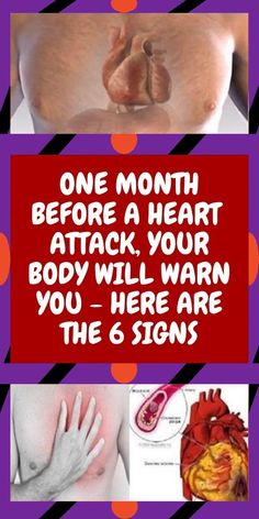 One Month Before a Heart Attack, Your Body Will Warn You – Here are the 6 Signs Natural Remedies For Allergies, Natural Headache Remedies, Natural Remedies For Anxiety, Health And Wellness Quotes, Wellness Tips, Wellness Fitness, Health Advice, Healthy Tips, How To Stay Healthy