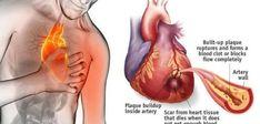 Cum sa opresti un atac de cord cu ajutorul unui ingredient din bucatarie