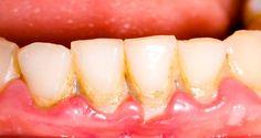 Gargariser une cuillère à soupe de cette huile pour éliminer la plaque dentaire, blanchir vos dents et traiter la mauvaise haleine.
