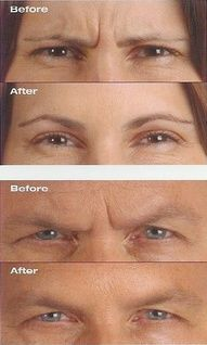 Photos from Allergan. I've used Botox for over 10 years in my practice and it works beautifully. Maybe I should try some myself someday. Richard Galitz, MD, FACS botox before after botox before and after botox results