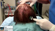 Vampire Treatment - A Solution For Baldness. #hairtransplantationworld #DrManoj