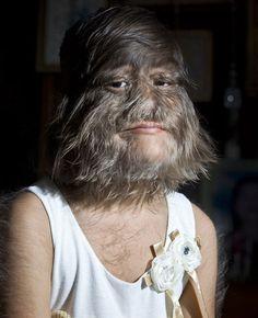 Une femme atteinte du syndrome d'Ambras (hypertrichose). Au moyen âge, ces personnes étaient appelées des loups-garous