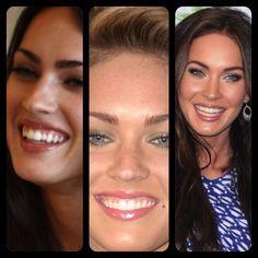 Megan Fox Before/After Veneers Megan Fox Before After, Perfect Smile, Without Makeup, Celebs, Celebrities, Plastic Surgery, Blue Hair, Dental, Teeth