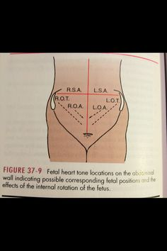 Fetal heart tone location..