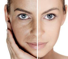 Los poros biertos de la cara comúnmente lucen como una cáscara de naranja. Hacen que el rostro se vea opaco, envejecido y grasoso.