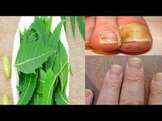 طرق طبيعية مجربة وفعالة  لعلاج فطريات الاظافر ..؟!!