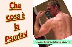Che Cos è la Psoriasi e Come si Manifesta: malattia delle pelle rimedi naturali . Psoriasi Mai Più Cura la psoriasi in modo naturale   Psoriasi rimedi naturali.