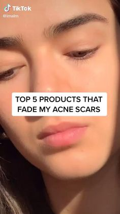 Dry Skin On Face, Face Skin Care, Scar On Face, Flaky Skin On Face, Acne Skin, Oily Skin, Best Acne Products, Beauty Products, Best Hair Care Products