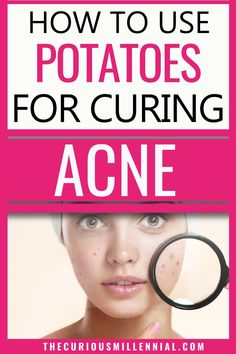 Potatoes significantly help in lightening pigmentation and acne scars. Potato juice helps in lightening uneven skin tone, remove dark spots and give clear skin. This post has the recipe for a DIY potato mask for acne scars, lightening blemishes, and giving you even looking skin in no time. Use these home remedies to get rid of acne with 1 potato slice.