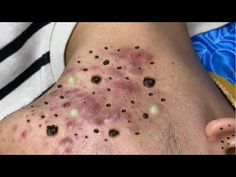 Relax Every Day With Thuy Truong Sac Dep Spa #21 - YouTube Pimples, Spa, Relax, Tattoos, Youtube, Tatuajes, Tattoo, Youtubers, Tattos