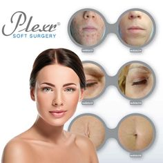 Scar Removal, Tattoo Removal, Eyelid Lift - Dr Anastasia Botha