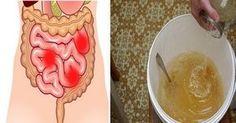 """Un articol de Razvan     Curele de curatare a colonului sunt un mod foarte eficient de a elimina toxinele acumulate in organism si de """"rese... Natural Remedies, Vegetables, Health, Food, Medicine, 2 Ingredients, Health Care, Vegetable Recipes, Eten"""