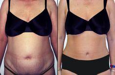 tummy tuck costul pierderii în greutate
